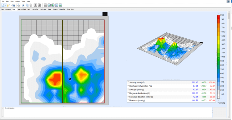 Pressure Mapping-Scan