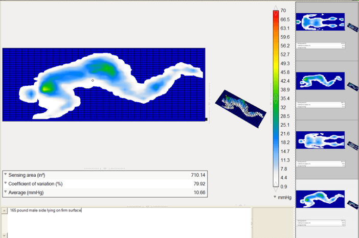 Bed Pressure Mapping
